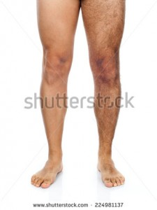 stock-photo-legs-of-a-man-his-right-leg-is-shaved-while-the-left-very-hairy-224981137